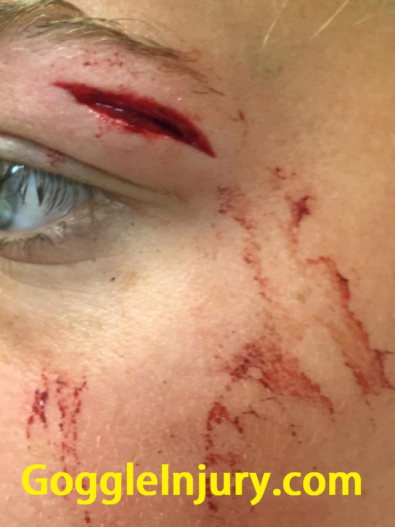 Field hockey injury caused by collision with athlete wearing goggles.