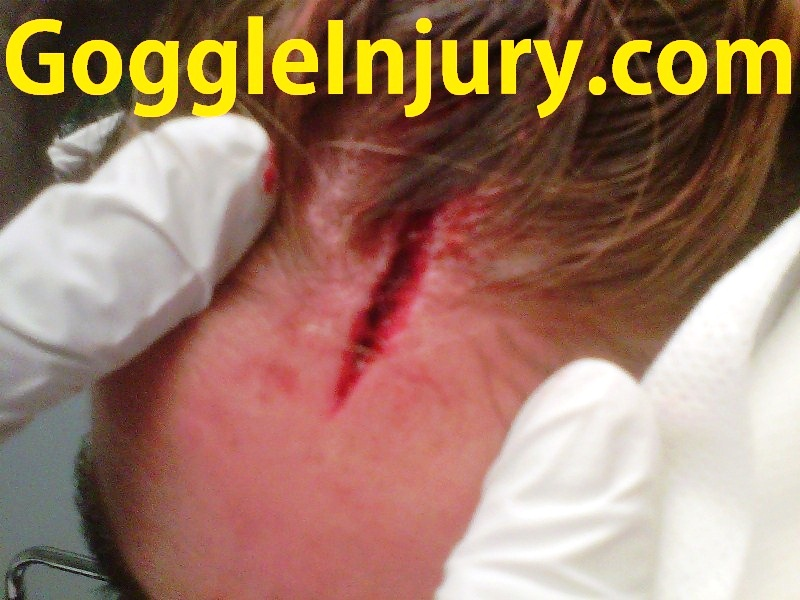 Field hockey scalp injury caused by collision with athlete wearing goggles.